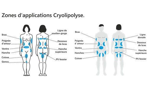 Cryolipolyse-institut-beaute-essonne-3